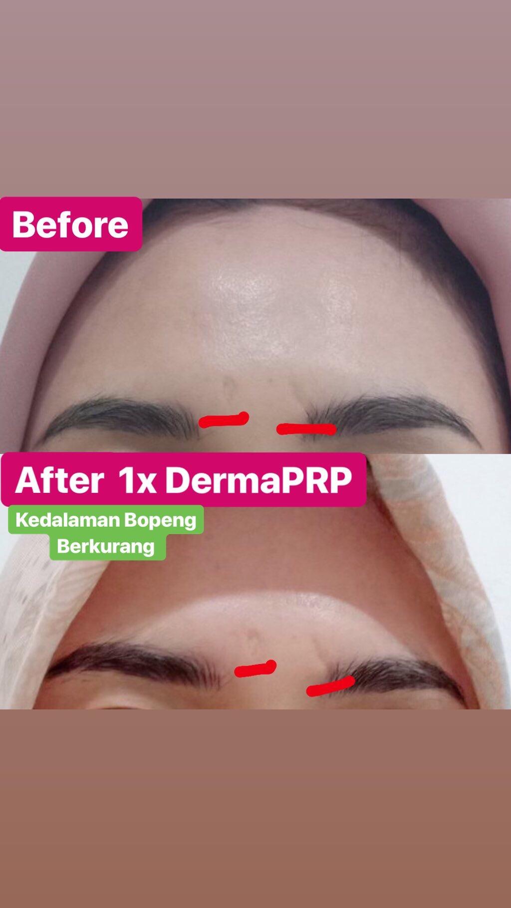 Hasil Treatment Derma PRP untuk menghilangkan bopeng