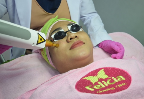 Felicia Laser Therapy